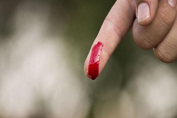Mơ thấy đứt tay chảy máu là điềm gì? Đánh số mấy?-1
