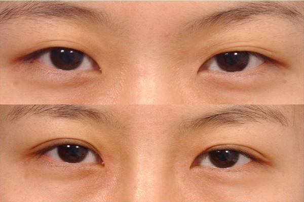 Xem tướng đôi mắt phụ nữ đàn ông đoán tương lai-1