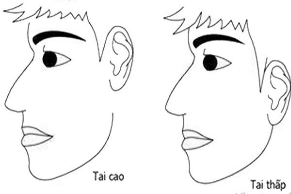 Tướng tai cao hơn mắt ở nam nữ có gì đặc biệt?-1
