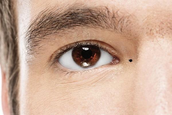 Tiết lộ vị trí những nốt ruồi nên tẩy trên mặt đàn ông 1659637621